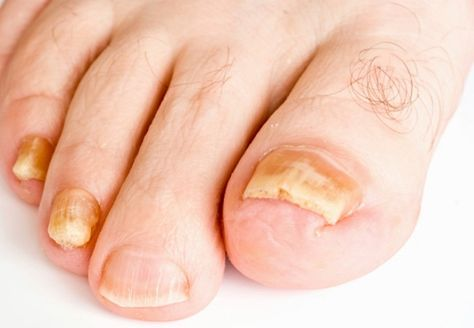 Causes of Brittle toenails and how they can be treated - Ask Health News