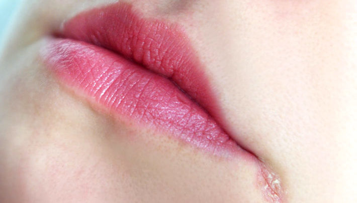 Treatment For Cracked Corners Of Mouth Ask Health News