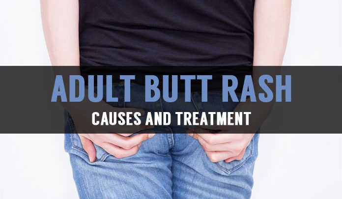 Butt Rash: Causes, Symptoms and Natural Treatment Methods